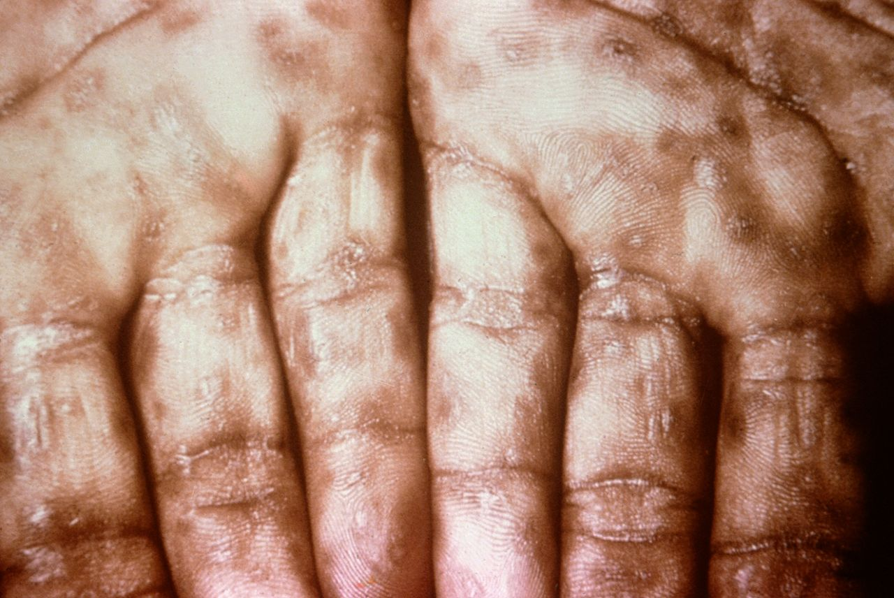 Syphilis Signs And Symptoms Typical presentation of secondary syphilis with a rash on the palms of the hands